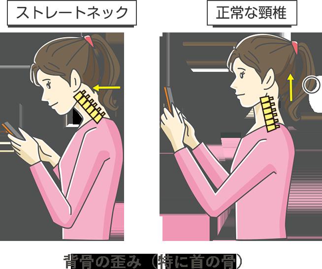 背骨の歪み説明画像