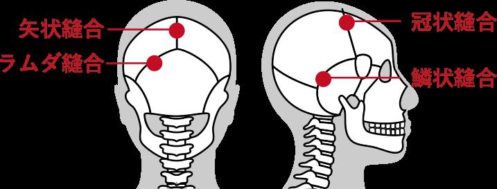 頭蓋骨の歪み説明画像