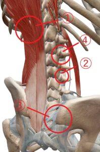 腰痛の発生部位1〜4で主に腰痛は発生する